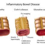 Curcumin for IBD Patients