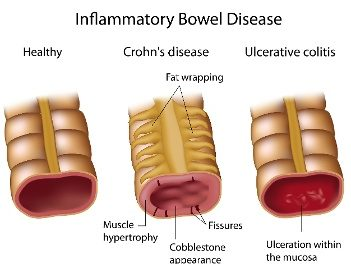 Curcumin for IBD Patients