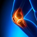 Knee Pain – Try Curcumall®